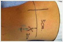 治療の特徴とコンセプトのイメージ